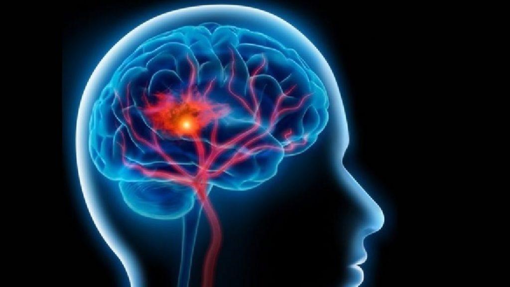 En el Día Nacional del Daño Cerebral, FEDACE reclama el apoyo de las Administraciones ante la situación causada por la COVID-19