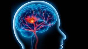 Las enfermedades del cerebro son la principal causa de discapacidad
