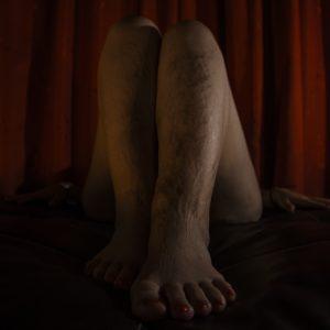 Catarsis: rechazo de una alusión que perturba el pensamiento y purga una postura nefasta. Esta mujer fue diagnosticada con Lupus Eritematoso Sistémico, una enfermedad crónica que causa daños en todos los órganos y sistemas del cuerpo humano. La fotografía refleja las cicatrices de lucha, causadas por esta enfermedad autoinmune, es decir, que el mismo cuerpo se ataca; estas secuelas son el resultado de la catarsis de una mujer empoderada de su cuerpo, de vencer prejuicios y de su ser. (Foto presentada a la edición 15 del  Concurso de Fotografía Digital del INICO - Fundación Grupo Norte)